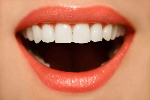5 Signs You Need Dental Implants
