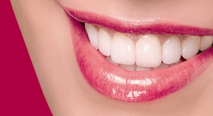Everything You Need To Know About Caring For Porcelain Veneers