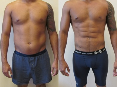 Why Are Tummy Tuck Surgeries Popular Among Men?